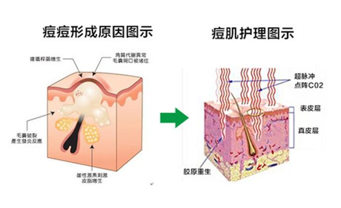 苗医生专业祛斑祛痘机构(台东店)