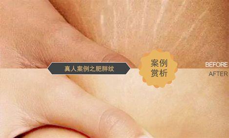 专业修复妊娠纹美容院