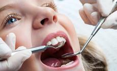 牙依馆儿童防龋成人洁牙套餐