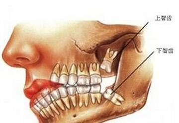 为什么很多人会长出智齿