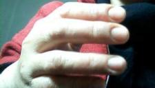舞女遭5男约出囚禁 牙签戳手指逼出银行密码