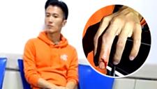 谢霆锋被大闸蟹夹穿手指