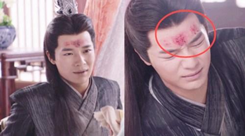 《萌妻食神》穿帮镜头!额头上瞬间消失的伤痕