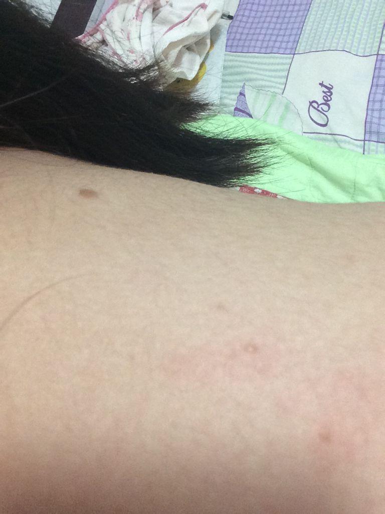 阴囊湿疹图片