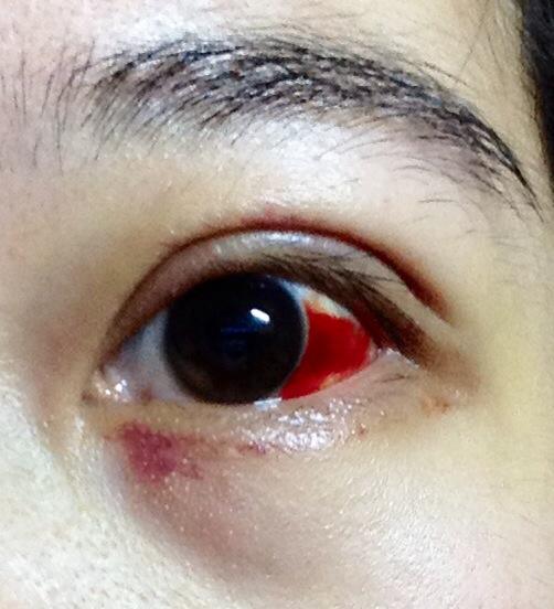 眼球上长了个白色疙瘩_两个星期以前就发现眼皮里有小颗粒,当时没怎么注意,.