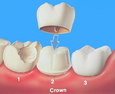 粘烤瓷牙_通常拔牙后3个月做烤瓷修复,零时牙是零时做的一颗暂时冠,待烤瓷牙做