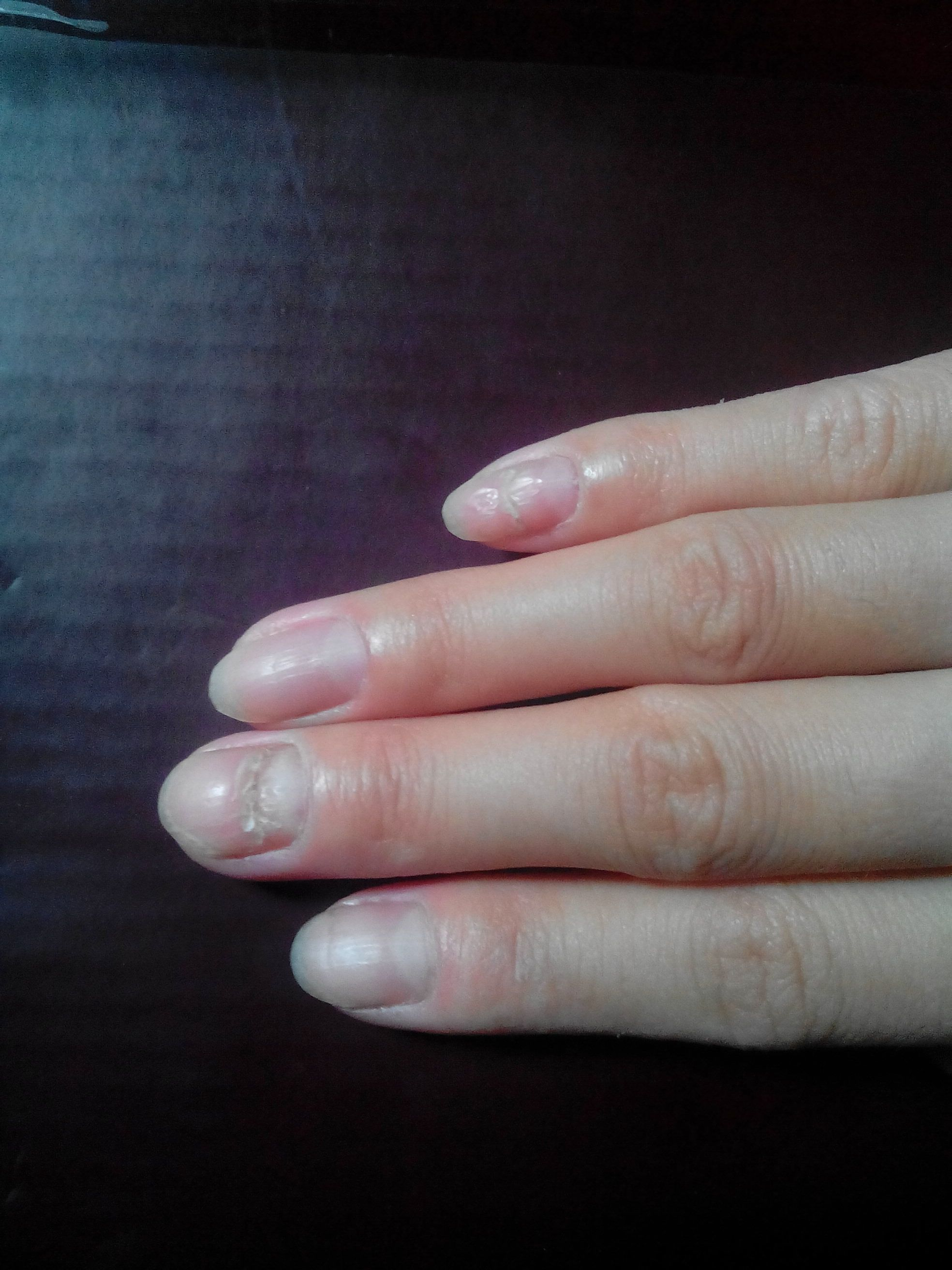 手指甲中间会断是怎么回事?有图大家帮看看 是缺什么营养?图片