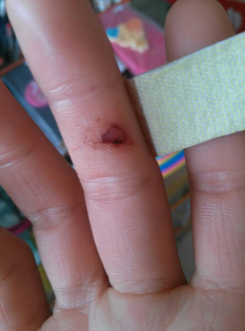 手上的伤口现在是这样的图片
