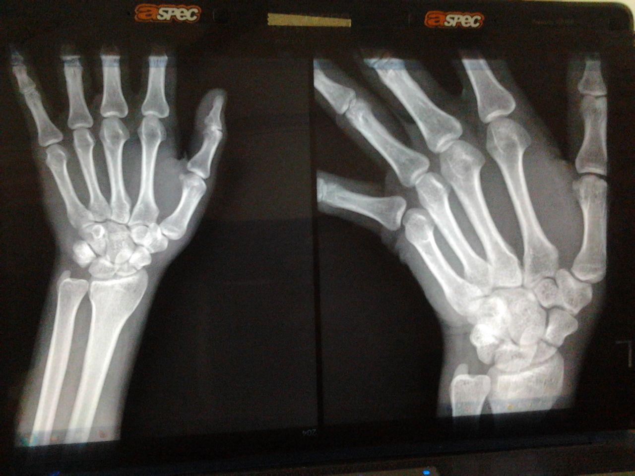 手骨折后多久才能好能动