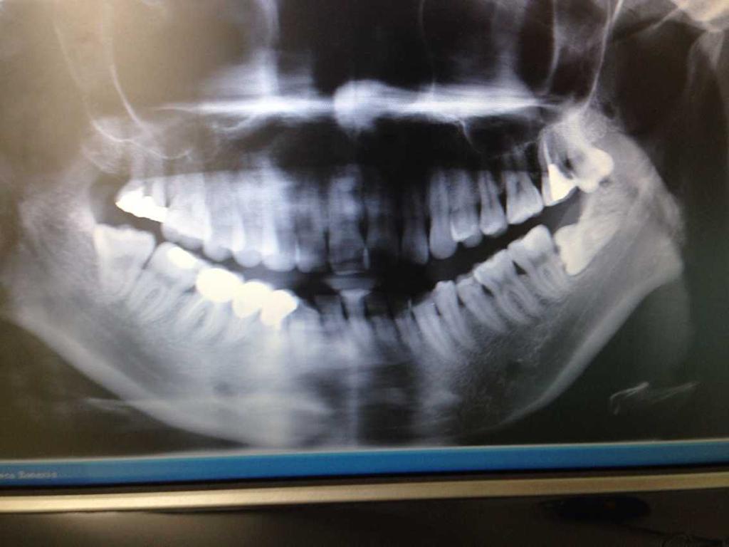 我的智齿有必要拔掉吗?