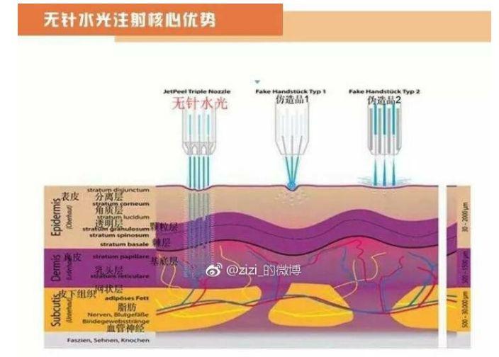 微针水光和无针水光的区别