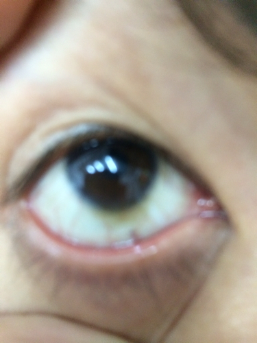 黑眼球上有个白点图片_黑眼球偏向上怎么矫正