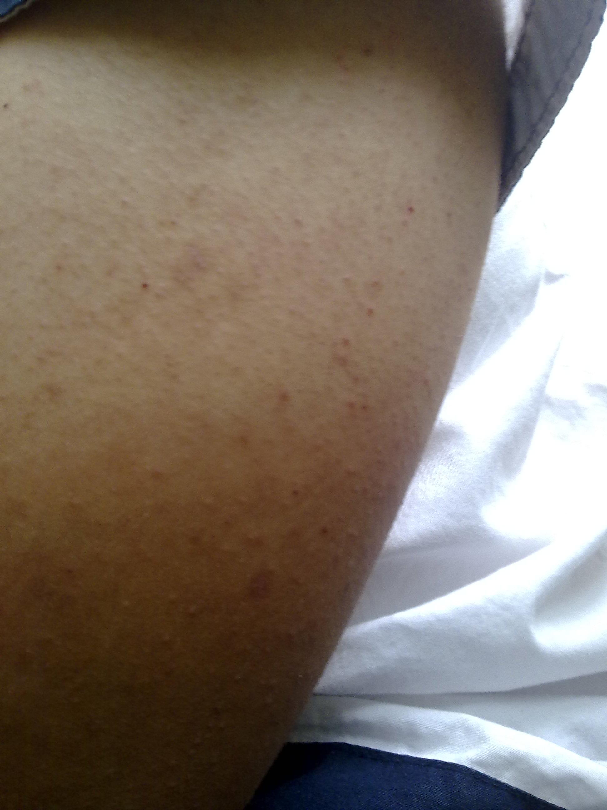 帮忙看看这是什么皮肤病图片