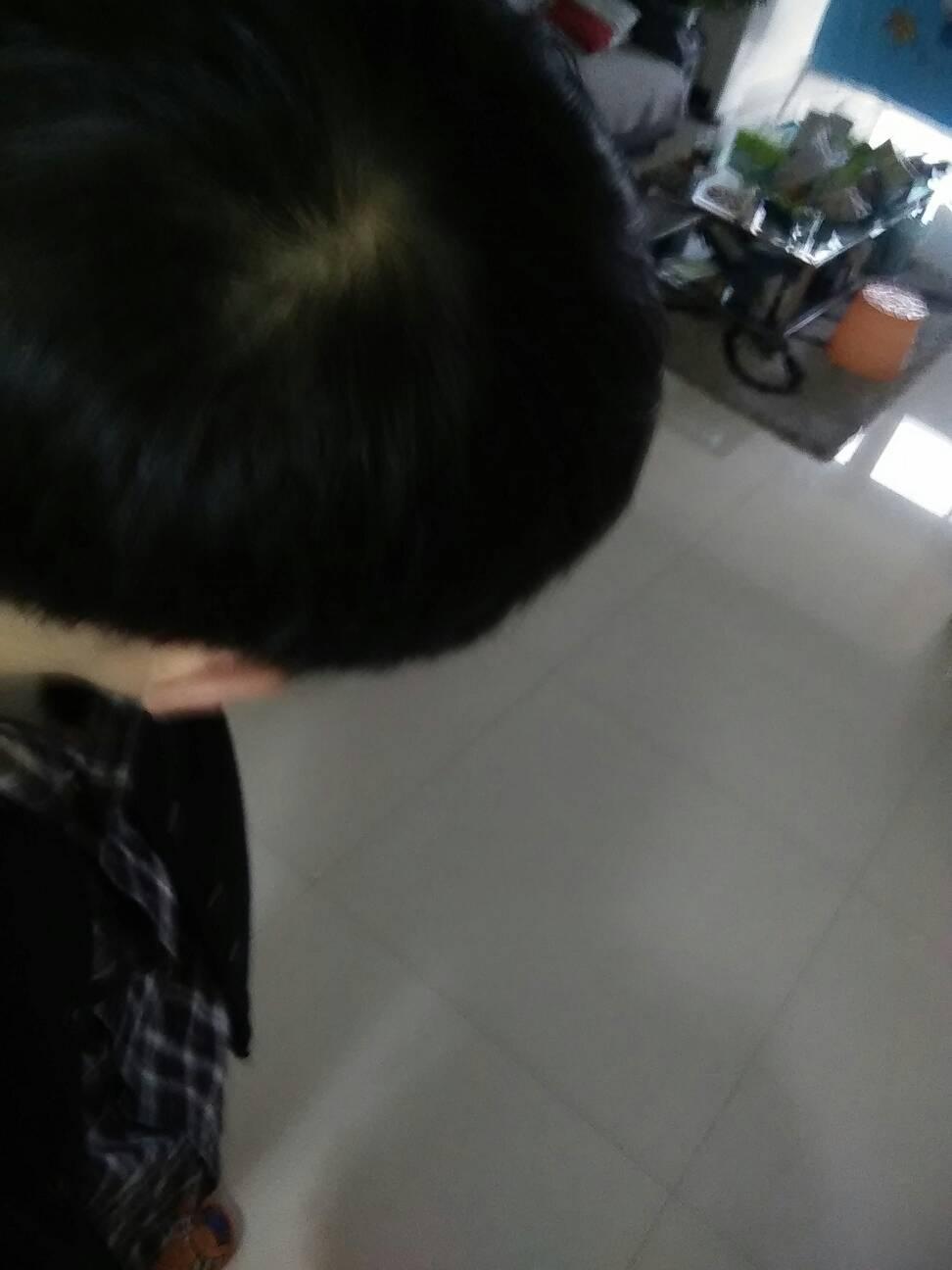 头顶漩涡处头发少!我才16岁,会不会是秃顶?好吓人啊!图片