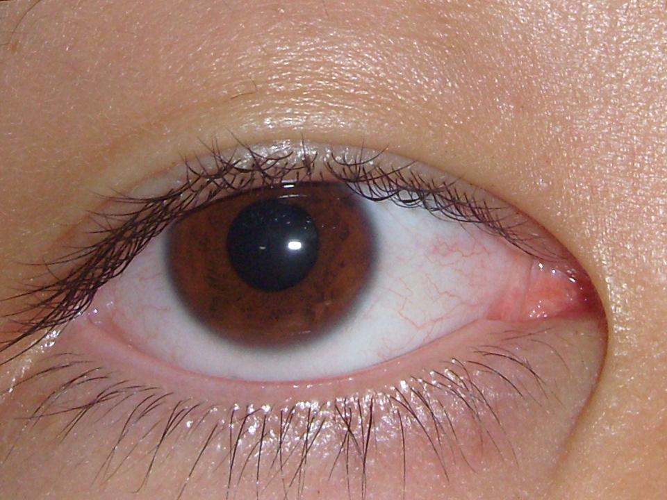 眼睛白眼球有血丝-眼睛白眼球有血丝最新资讯