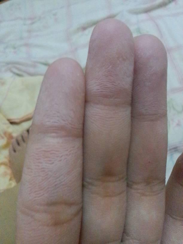请问是什么原因?怎么治疗?我小时候手指经常蜕皮,冬天长冻疮.
