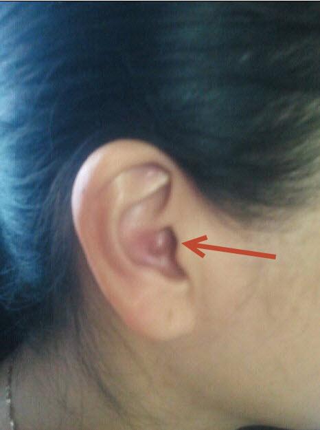 耳朵里长了个疖子,要涂什么好?如图图片
