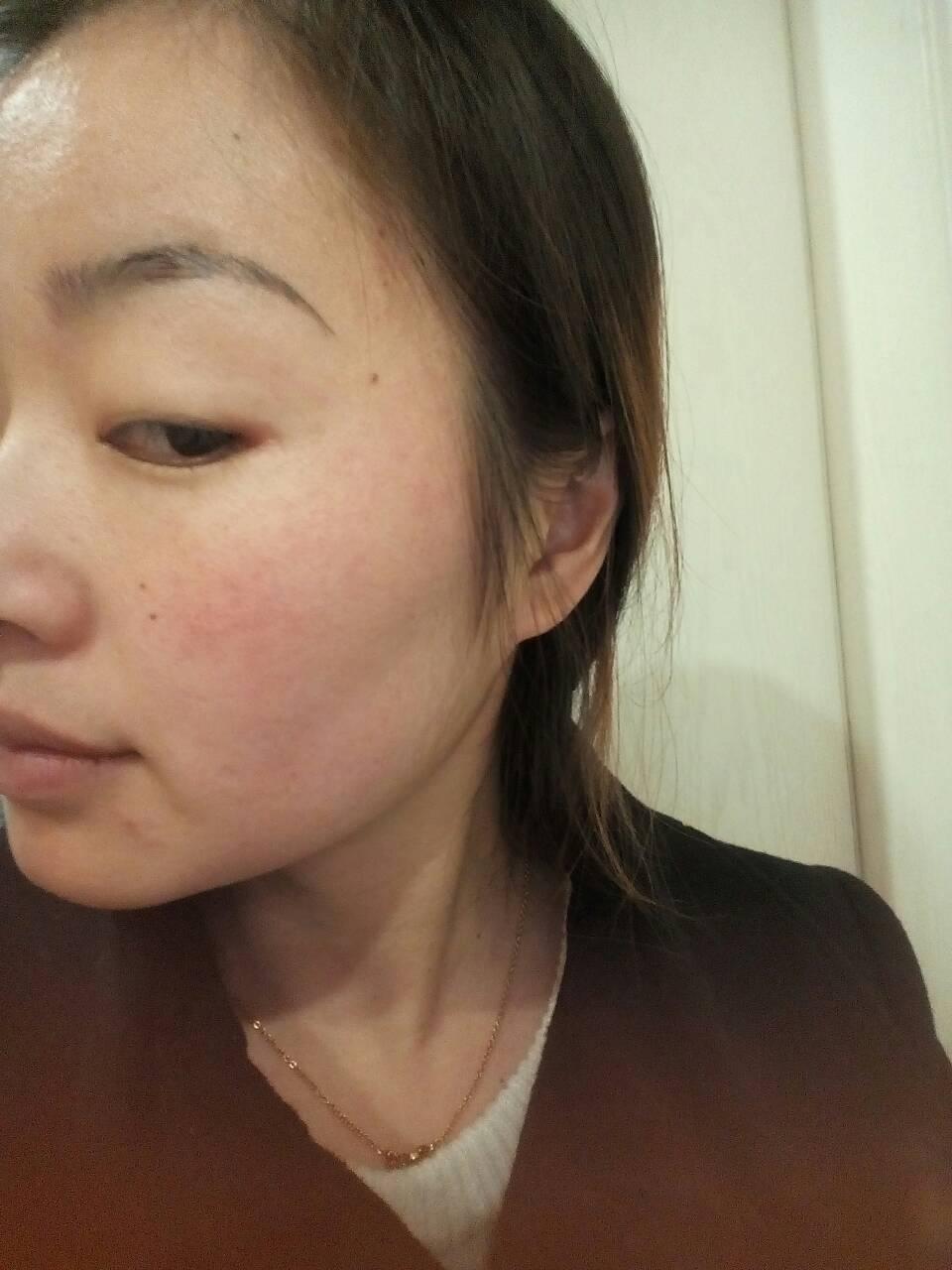 脸部皮肤薄怎么办_皮肤角质层很薄,容易过敏脸部发红.一块一块颗粒状.有