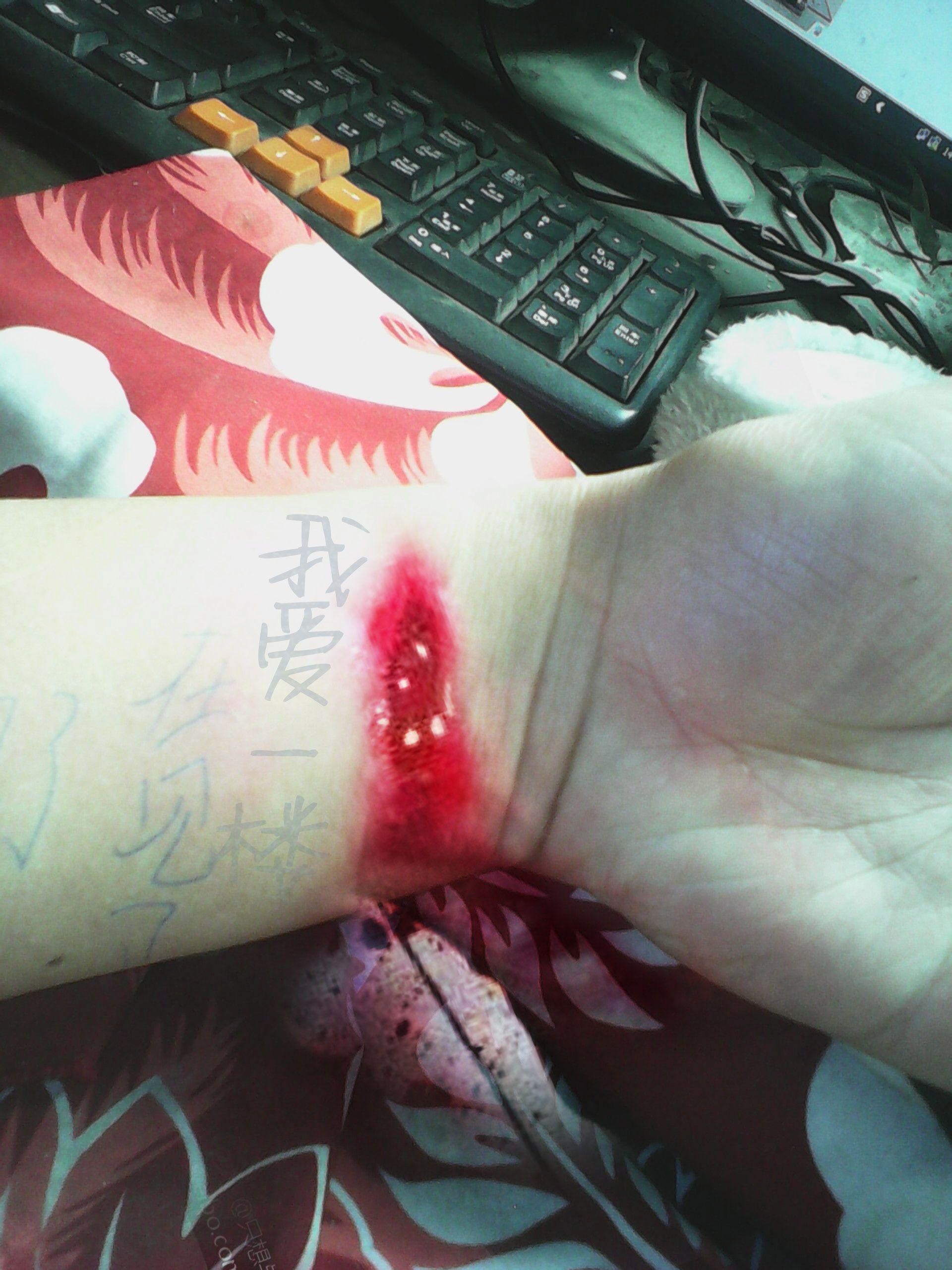 帮我这个图片PS成割腕的图片,要求要有血,逼真 ...