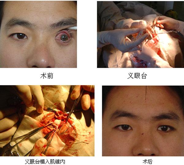 眼球摘除_眼球破裂的眼球摘除术及眼窝填充术
