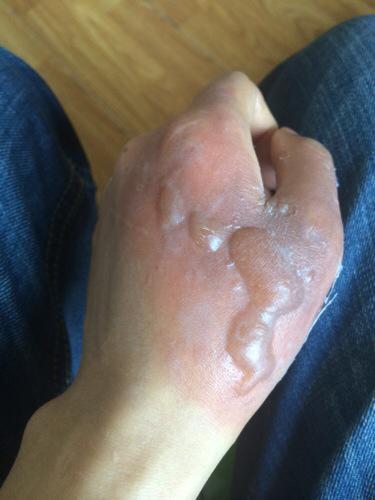 手被蒸烫伤怎么办_手被烫伤后出现出现几次水泡多弄破了昨天换药膏后变