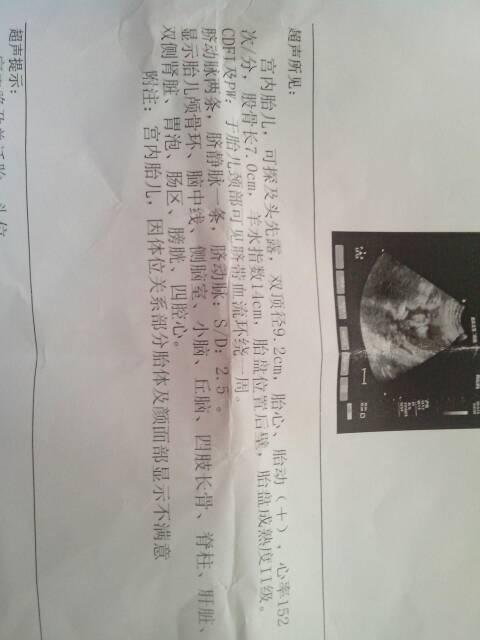 2014-07-20 过荣华 主治医师 怀孕二十三周胎儿体重550克正常吗 2014