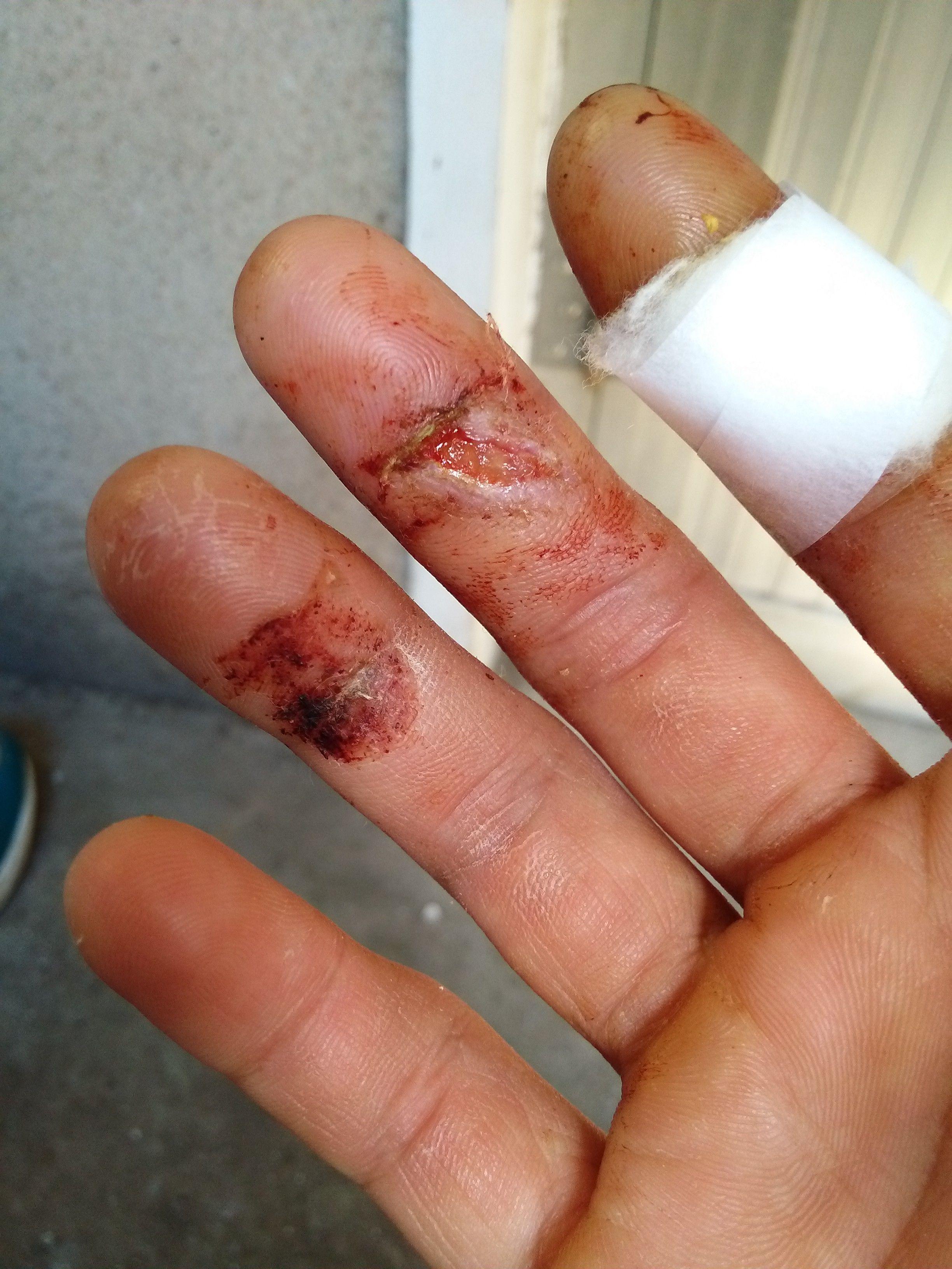 手指被压伤两天了 现在指甲根部肿胀 已经游离了 有疼痛感觉 半个指甲图片