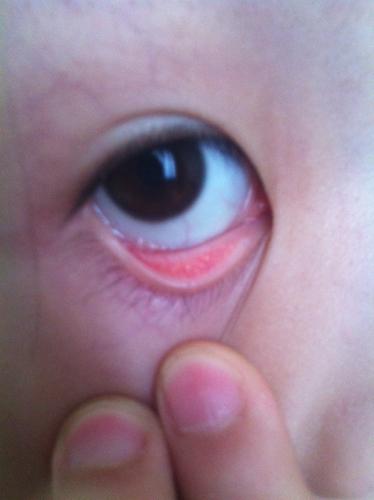 眼睛充血但是不痛不痒_问:眼睛里面有白色的小颗粒.不痛不痒.