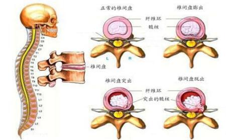 腰椎间盘膨出疗法_1,腰椎间盘膨出:即纤维环没有完全破裂,髓核从破损处凸出压迫