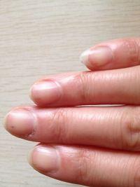 十个手指甲突然都有点淤血,小条状,一碰很疼,没被夹过碰过,请问