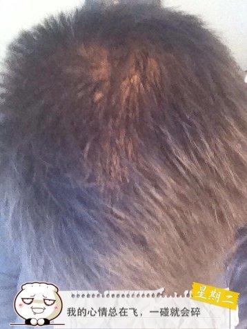 头顶漩涡处显得头发少,这种属于正常情况吗?图片