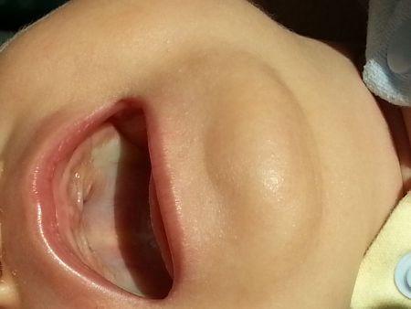 不到二个月婴儿上腭发白正常吗,是什么原因?详见图片