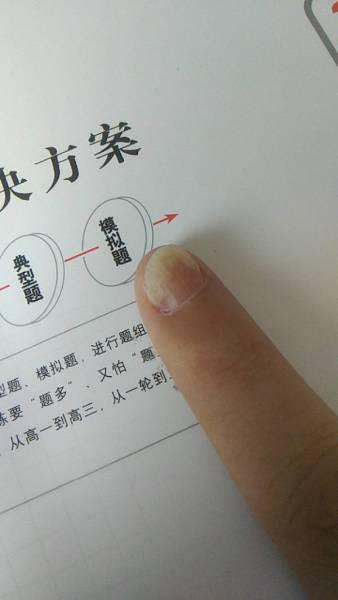 手指甲变形怎么回事图片