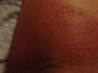 大腿内侧对称痒,红肿,淋巴结肿大