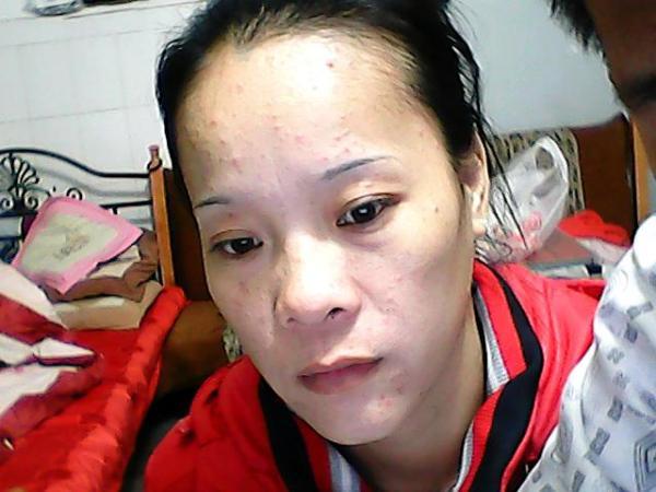 中年妇女脸上长痘痘是怎么回事?