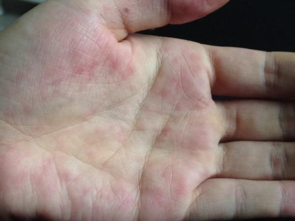 朋友手心长了红点 不痒 但是偶尔握紧手的时候会有点刺痛 请问是什么病图片