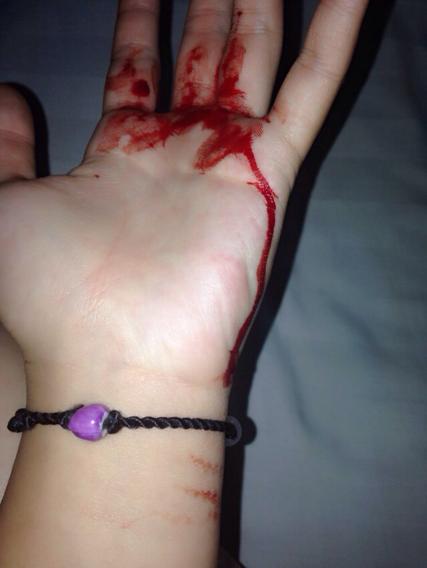 求手流血的图片或许受伤的,要 -男生自残的照片 猴子受虐患病自残
