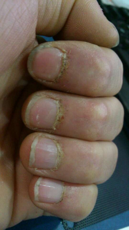 主要病症就是手指甲上方已经标出来我也不