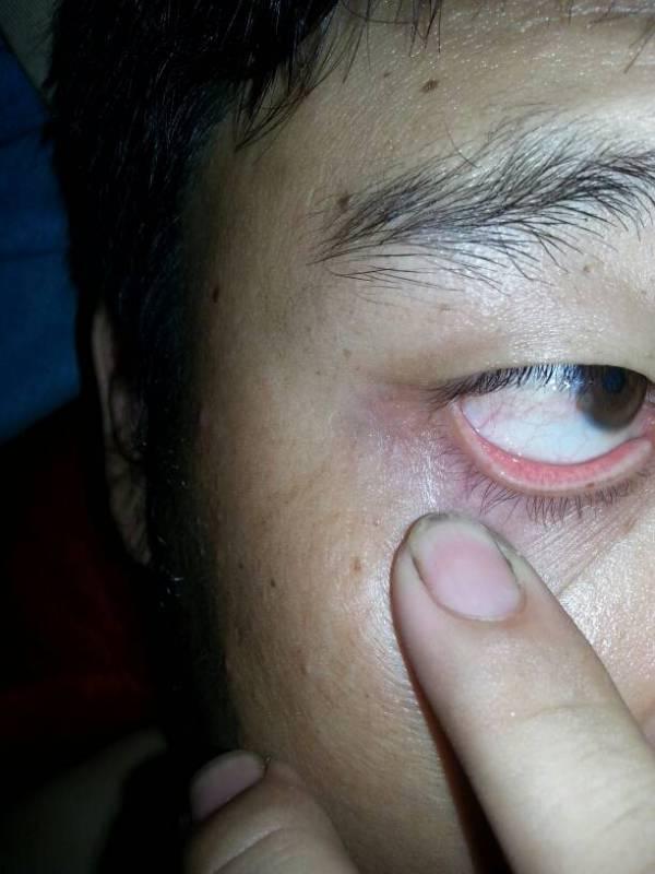 黑眼球上有个白点图片_昨天一停药眼睛就有点混浊黑 眼球有白点