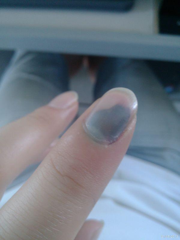 手指甲被轧到,疼 怎么办 见图 里面有淤血