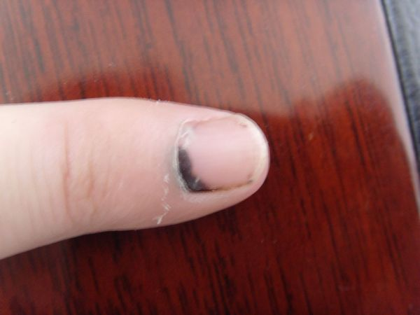 人,手指被铁门压伤,指甲内有淤血怎么处理