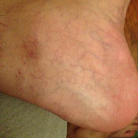 腿上有红血丝怎么回事