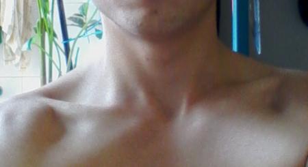 脖子前面有痣代表什么
