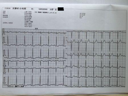 心电图异常_异常心电图图谱