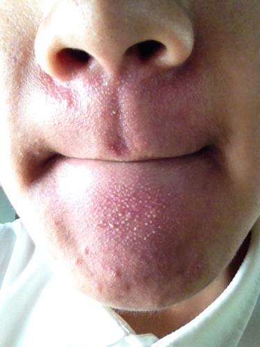 治疗青春痘最好的医院_脸上长了好多痘痘一直在长去哪个医院治疗比较好比较